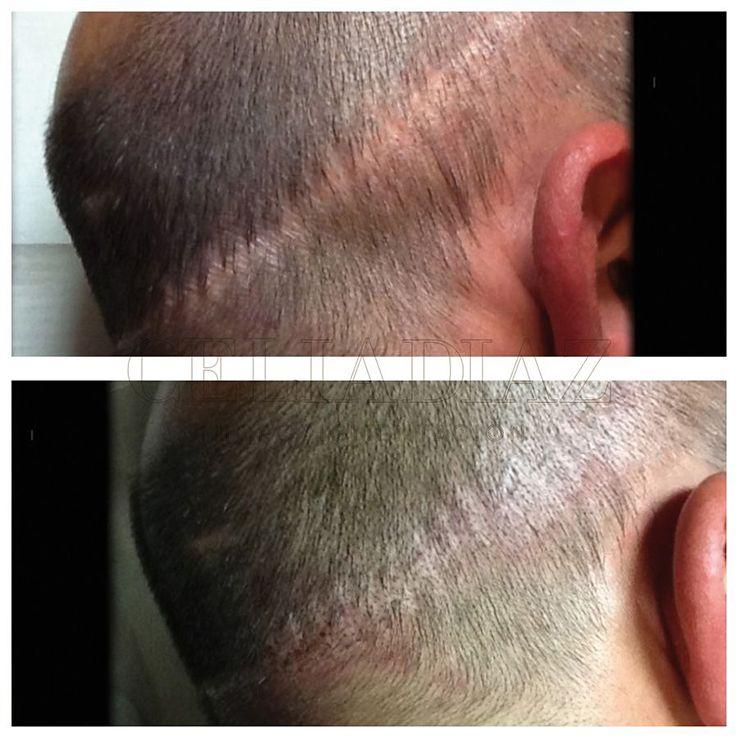 Micropigmentación de Cicatrices